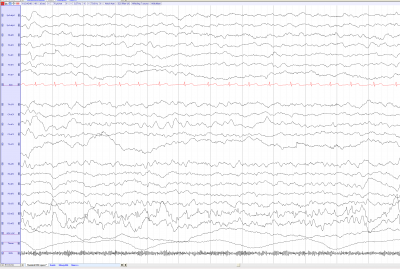 EEG of the month 1(source).png