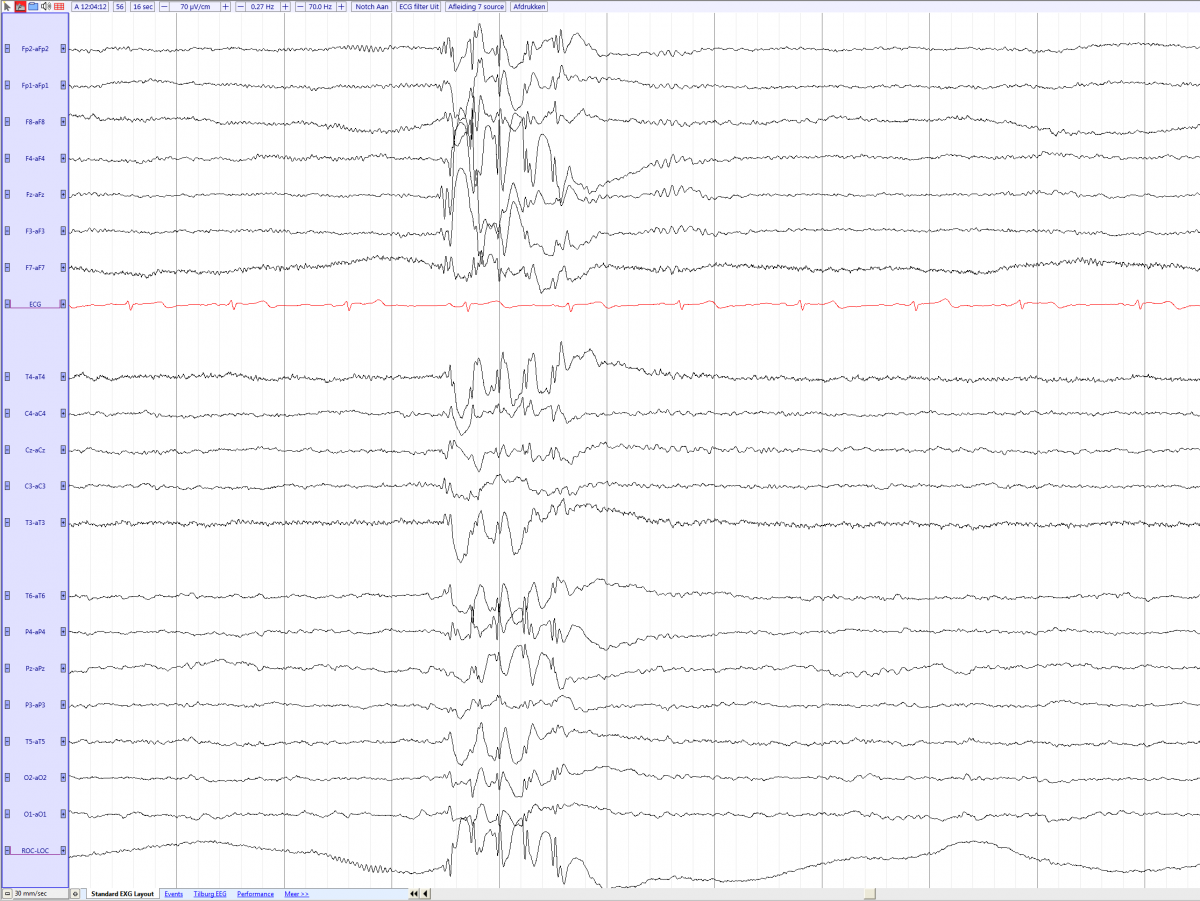 Juvenile myoclonic epilepsy in a 15 year old male (source) EEGpedia.png